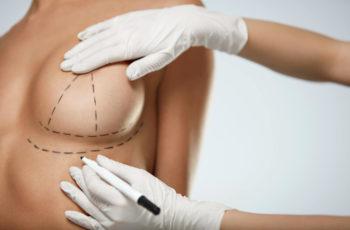 Cirurgia de Mama: cuidados antes do procedimento